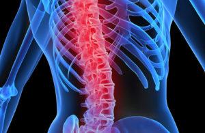 Tengo Osteoporosis, ¿qué puedo hacer?